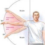Shoulder Pain. Shoulder Physio. Physio for Shoulder Pain Injury. Shoulder