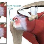 Shoulder Pain. Symptoms.  Shoulder Physio. Physio for Shoulder Pain
